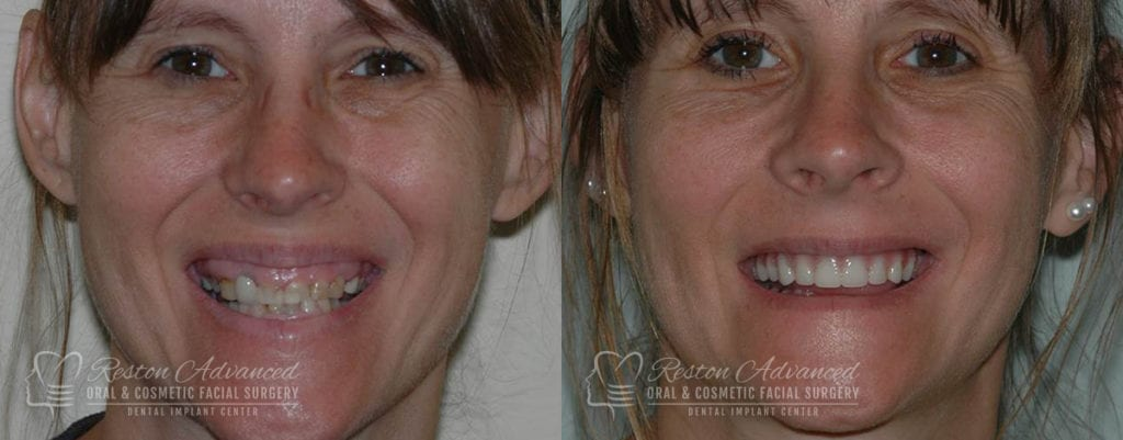 Dental Implant Before and After Photo 0000_1