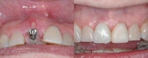Dental Implant Before and After Photo 0001_2