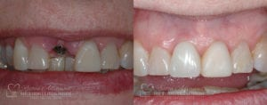 Dental Implant Before and After Photo 0002_3