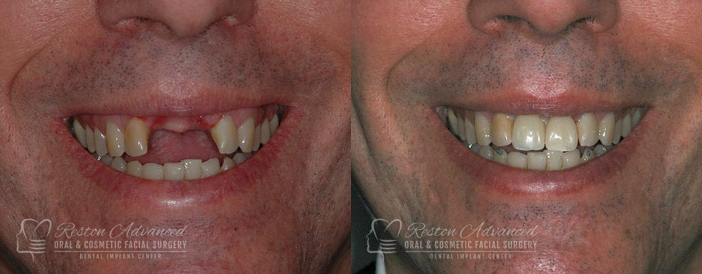 Dental Implant Before and After Photo 0003_4